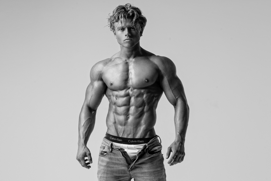 Diabetic-Bodybuilder-Aidan-Broddell